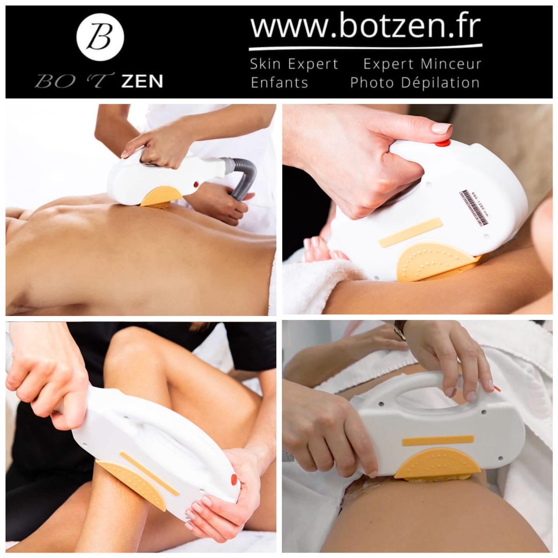 Epilation-definitive-institut-botzen-le-havre